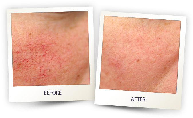 Laser Skin treatment - before and after - Noris Medical