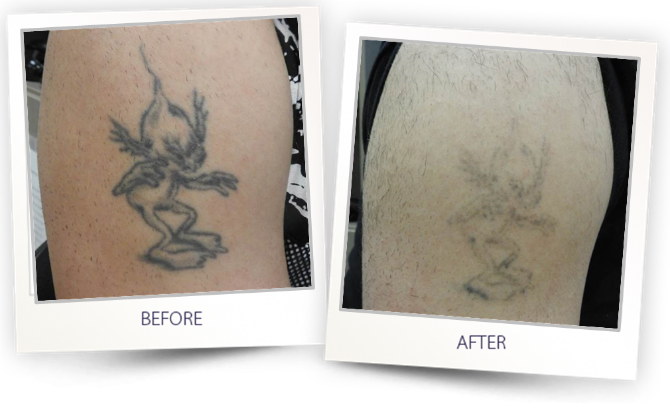 Tattoo Removal with ALMA Q